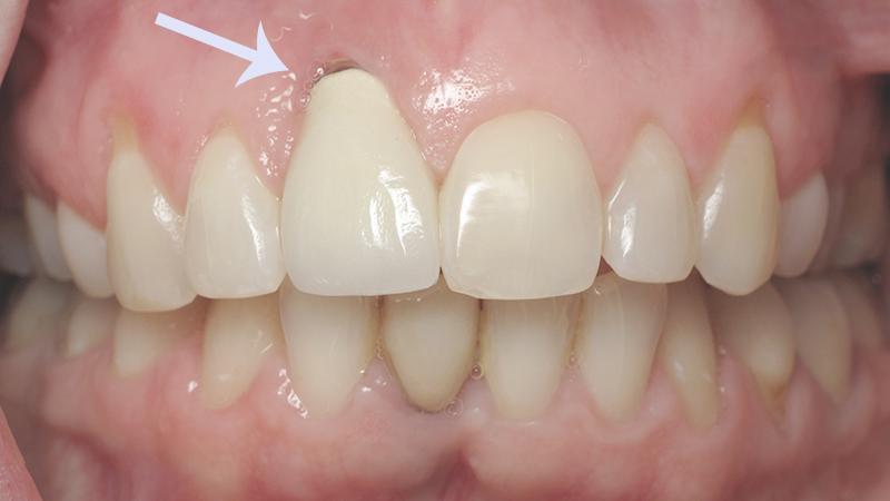 Estética Com Próteses Dentárias Sobre Implantes Gengiva