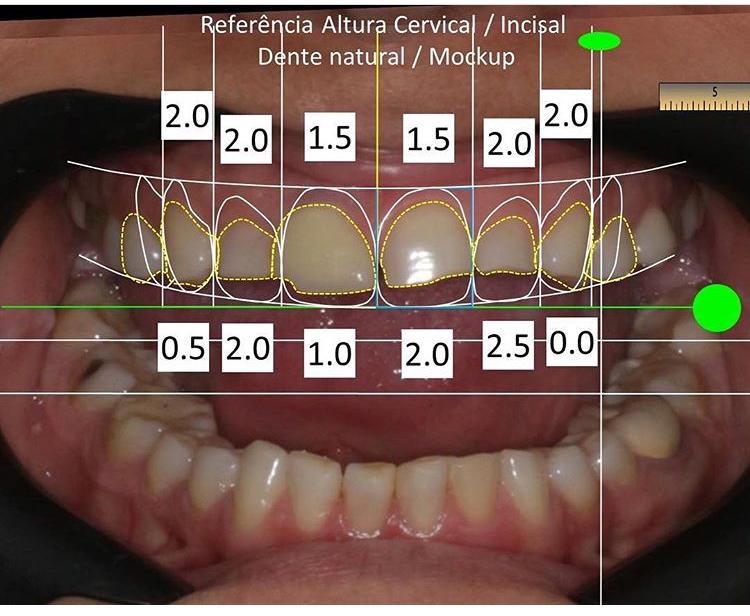 44a47567f Ortodontia