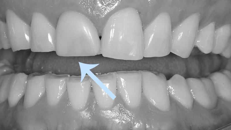 Bruxismo Desgastes Dentários