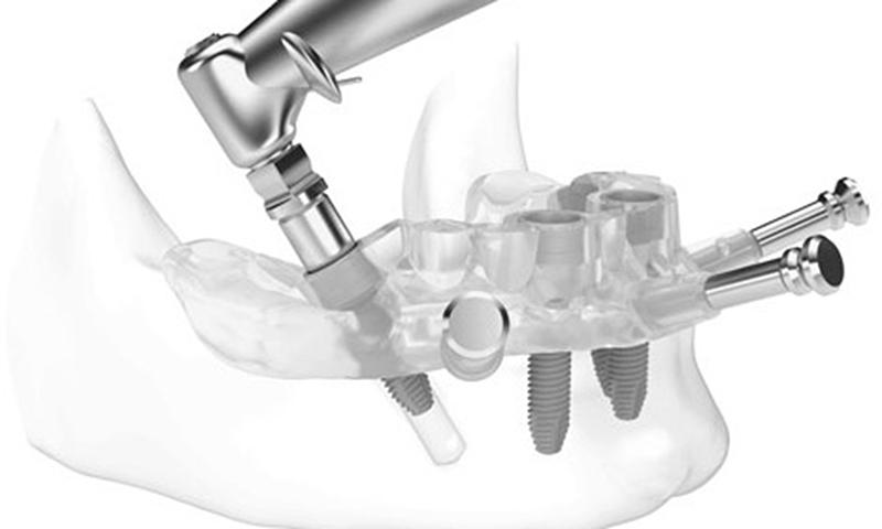 Cirurgia Sem Cortes E Pontos Implante Dentário
