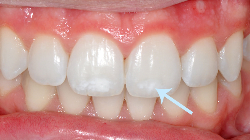 Clareamento Dental Tipos Manchas