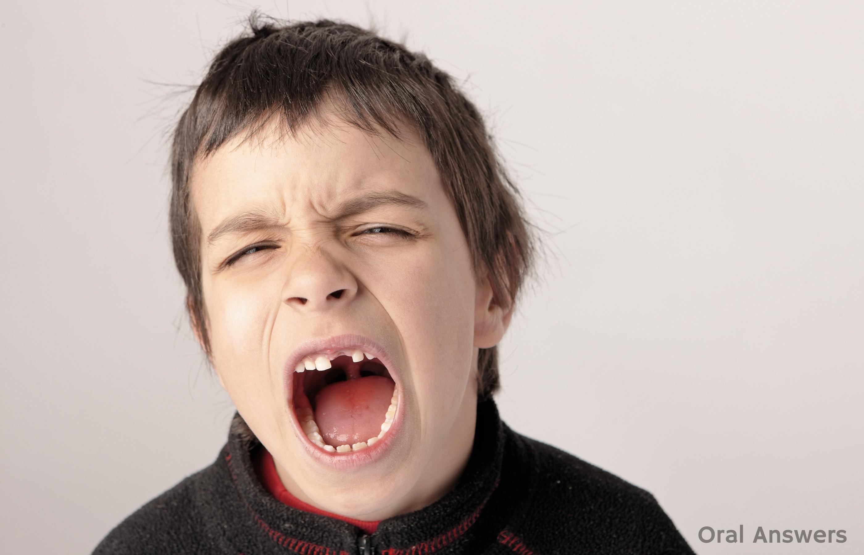 Crianca Dente Quebrado 1