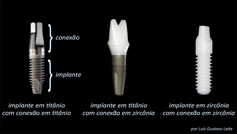 Estética Em Prótese Dentária Sobre Implante Pilares