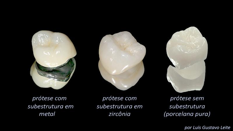 Estética Em Prótese Dentária Sobre Implante Tipos