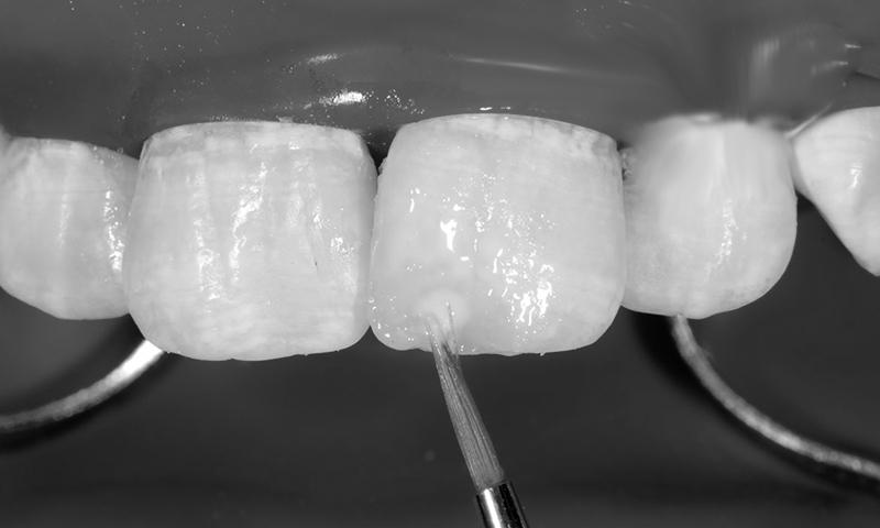 Faceta Dentária Em Resina (1)