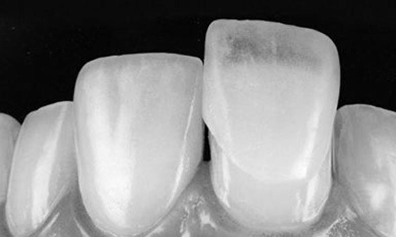 Faceta Dentaria Lente De Contato Dental Indicações (1)