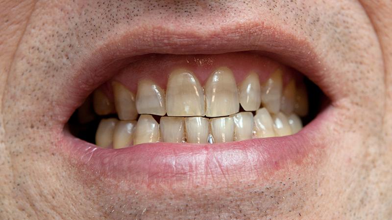 Lente De Contato Dental Famosos Antibiotico