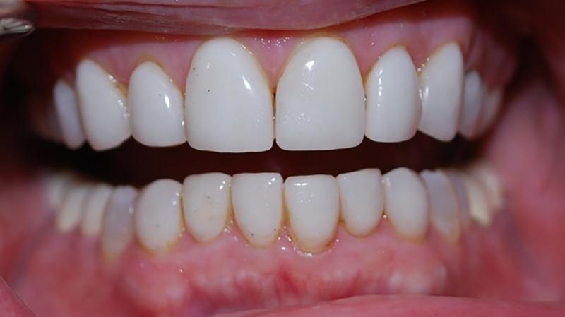 Lente De Contato Dental Famosos Fragmentos Faceta Em Resina 1