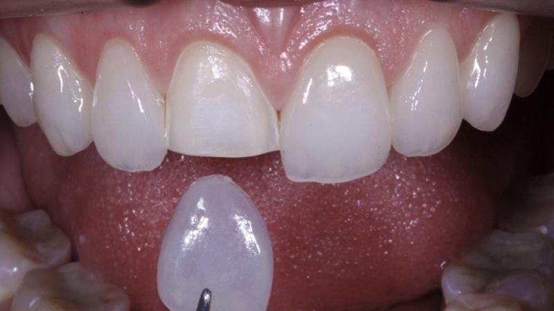 Lente De Contato Dental Famosos Indicação 1