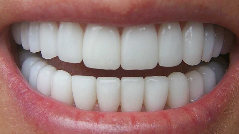 Lente De Contato Dental Famosos Problemas 1