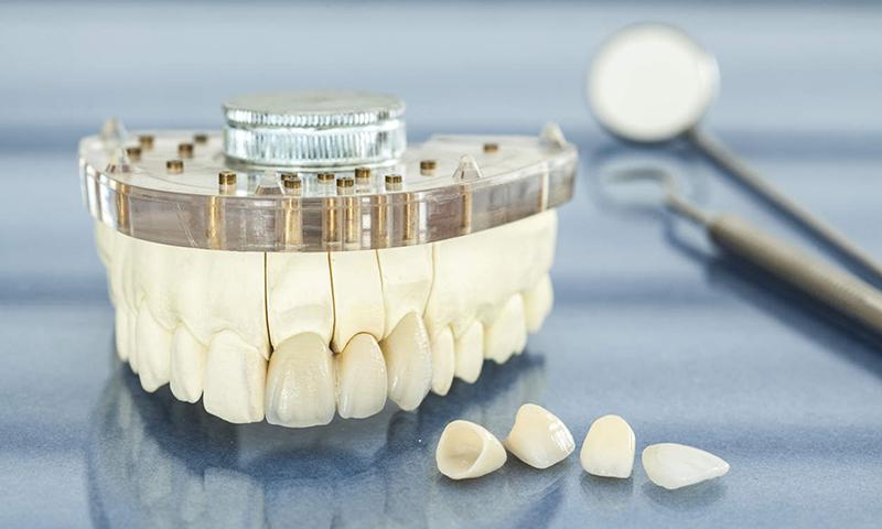 Preço Da Prótese Dentária Fixa Em Porcelana