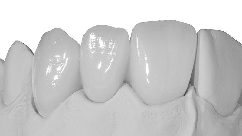 Protese Dentaria Em Porcelana Pura E Lente De Contato Dental