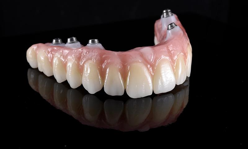 Protese Dentaria Protocolo Dentadura Fixa