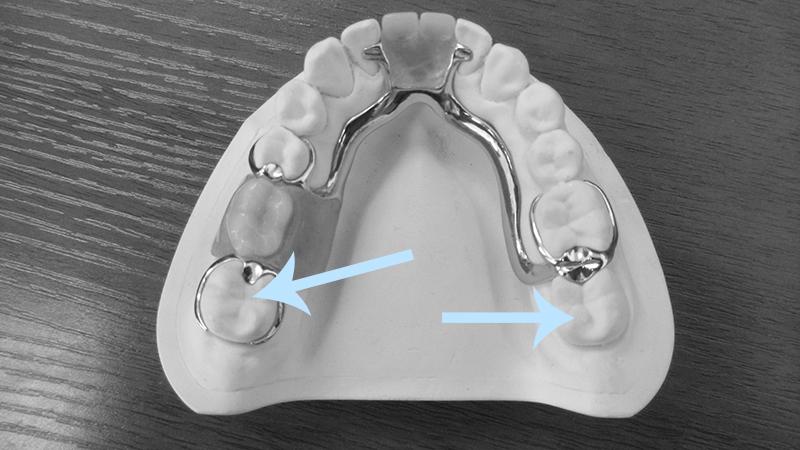 Protese Dentaria Removel Grampo Metal