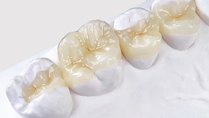 Restauração Dental Em Porcelana Blog