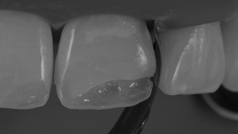 Troca Restauração Dentes Anteriores Resinas