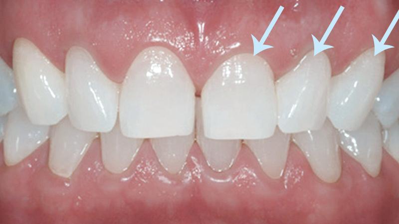 Clareamento Dentário Caseiro Eficiência