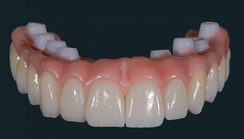 Dentadura Fixa Estrutura Zircônia