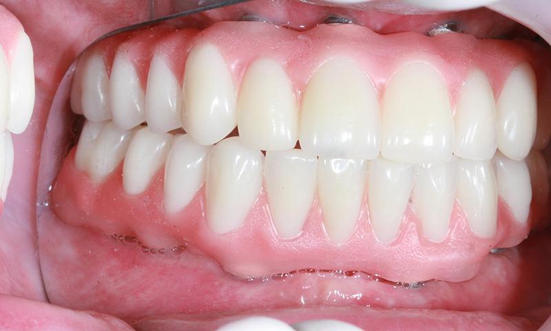 Prótese Protocolo Em Resina Acrílica E Implante Dentário