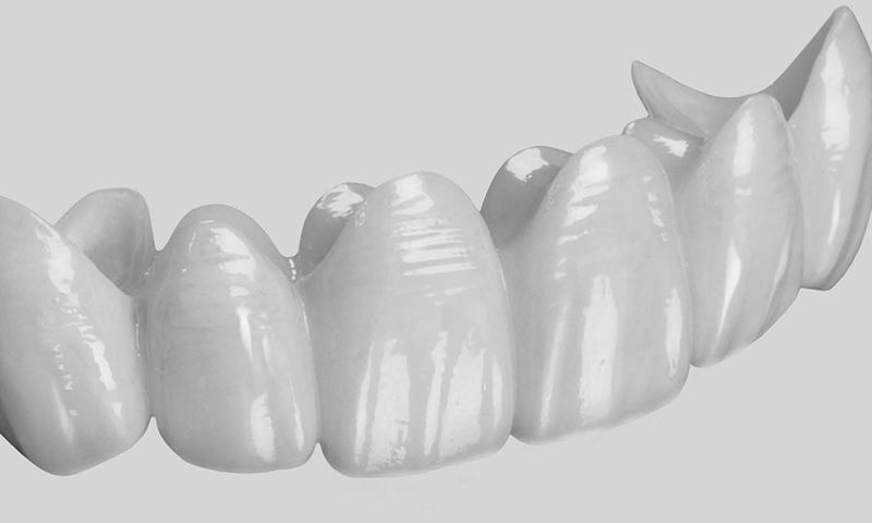 Prótese Dentária Fixa Em Porcelana Pura Em Pôntico (1)