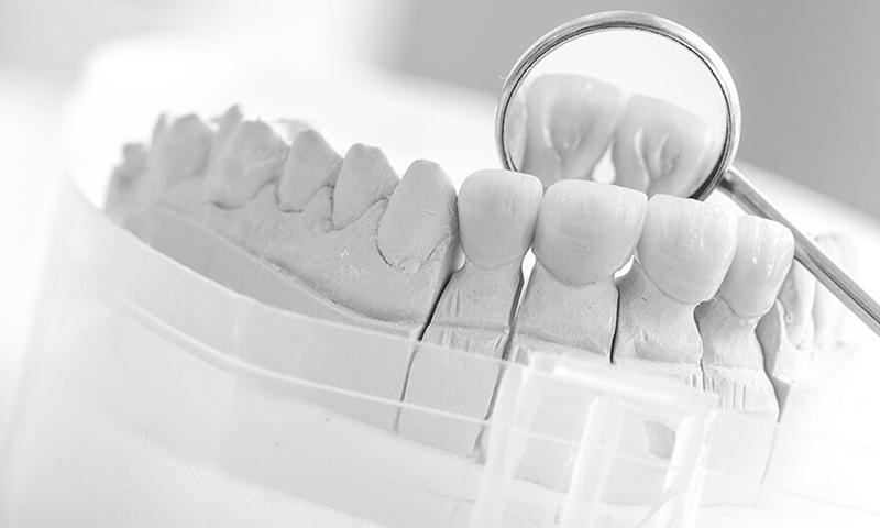 Prótese Dentaria Fixa Em Porcelana Dentes Anteriores Incisivos