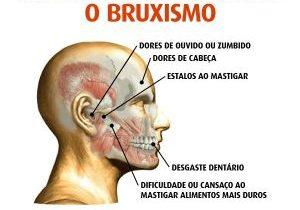 Bruxismo