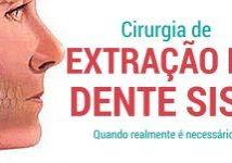 Cirurgia De Extração Do Dente Siso 1