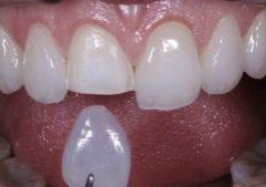 Lente De Contato Dental Famosos Indicação 1 (1)
