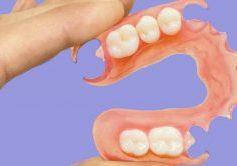 Prótese Dentária Flexivel Durabilidade Prós E Contras Post Blog 1038x576
