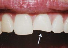 Restauração Dental Em Porcelana Dente Anterior