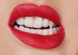 Restauração Em Porcelana Recuperar Desgastes Dentários Pelo Bruxismo Post Blog (1)