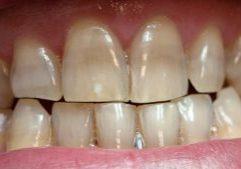 Dentes Manchados Por Antibióticos Post Blog
