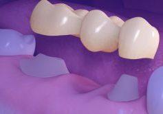 Protese Dentaria Em Porcelana Substituir Implante Dentario 1038x576